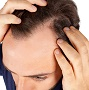 Health and beauty information hair loss